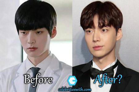 Ahn Jae Hyun Plastic Surgery