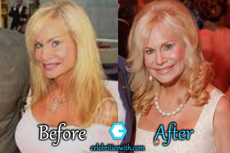 Annabel Bowlen Plastic Surgery