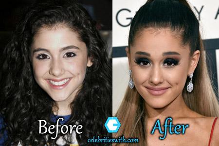Ariana Grande Plastic Surgery