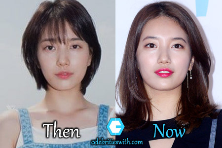 Bae Suzy Plastic Surgery Picture