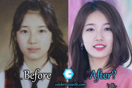 Bae Suzy Plastic Surgery Eyelid Nose Surgery Rumors