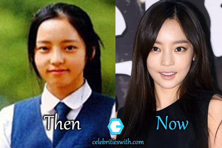 Goo Hara Plastic Surgery Picture