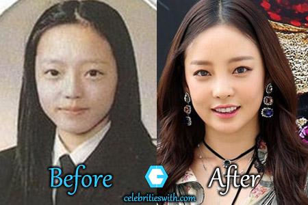 Goo Hara Plastic Surgery