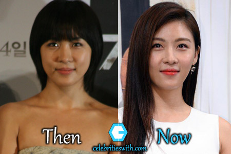 Ha Ji Won Plastic Surgery