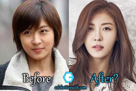 Ha Ji Won Plastic Surgery Nose Job Eyelid Surgery