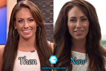 Holly Sonders Plastic Surgery, Eyelift, Nose Job, Before ...