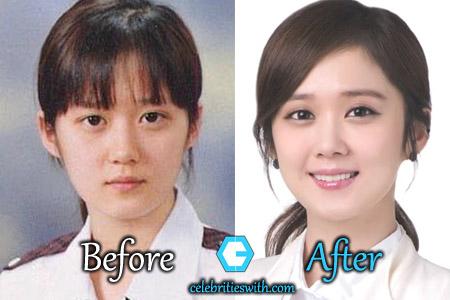 Jang Nara Plastic Surgery
