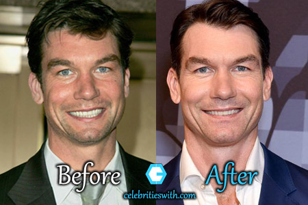 Jerry O'Connell Plastic Surgery