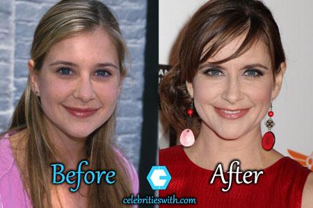 Kellie Martin Plastic Surgery