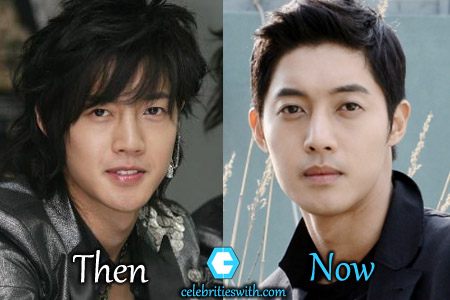 Kim Hyun Joong Plastic Surgery Picture