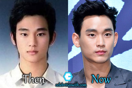 Kim Soo Hyun Plastic Surgery Picture
