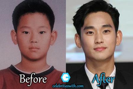 Kim Soo Hyun Plastic Surgery