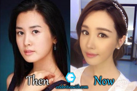 Lee Da Hae Plastic Surgery Picture