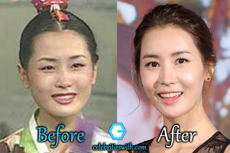 Lee Da Hae Plastic Surgery