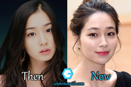 Lee Min Jung Plastic Surgery Eyelid Surgery Before And