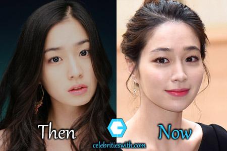 Lee Min Jung Surgery