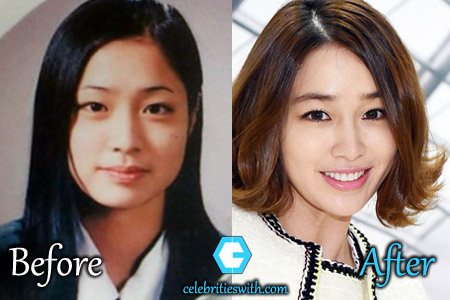 Lee Min Jung Plastic Surgery