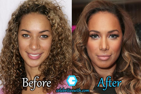 Leona Lewis Nose Job
