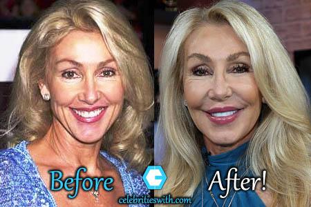 Linda Thompson Plastic Surgery