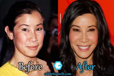 Lisa Ling Plastic Surgery
