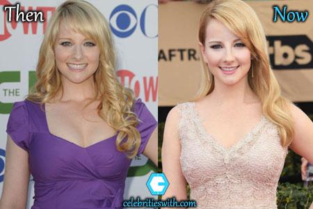 Melissa Rauch Breast Reduction