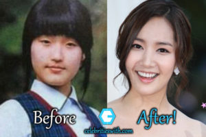 Celebritieswith Com All About Celebrity Plastic Surgery