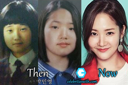 Park Min Young Plastic Surgery Eyelid Nose Job Before After Pics