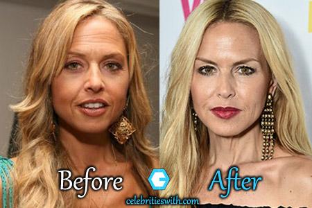 Rachel Zoe Plastic Surgery