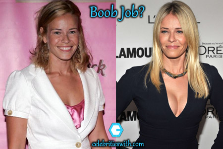 Chelsea Handler Boob Job