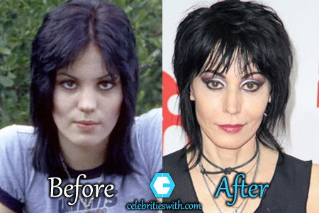 Joan Jett Nose Job