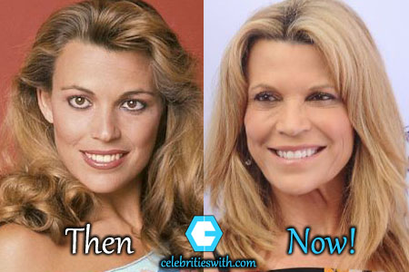 Vanna White Facelift