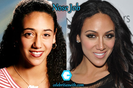 Melissa Gorga Nose Job