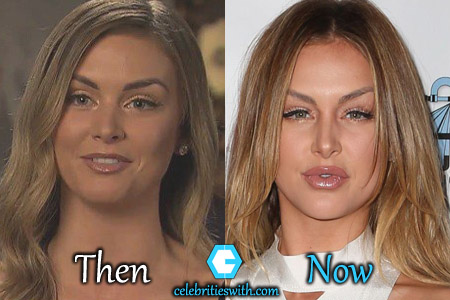 Lala Kent Plastic Surgery Picture