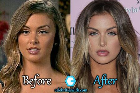 Lala Kent Plastic Surgery