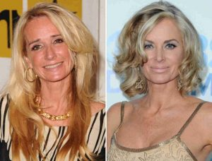 Kim Richards before and after cosmetic surgery