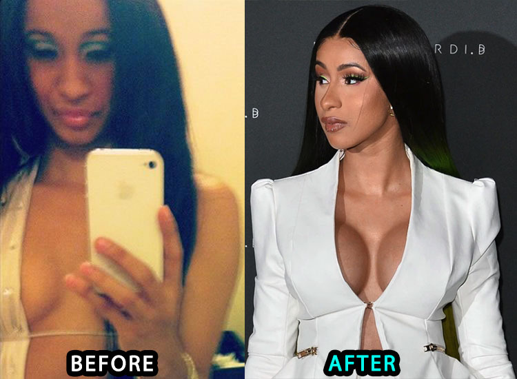 Cardi B Boob Job Picture Before and After