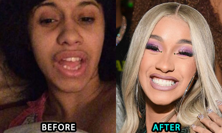 Cardi B's new teeth before and after